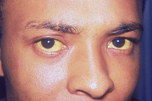 jaunisse yeux jaunes